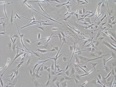 Melanocytes contaminated with fibroblasts