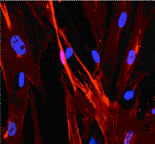 Human liver myofibroblasts with alphaSMA obtained at tebu-bio