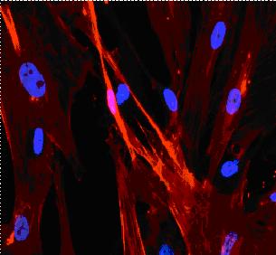Human liver myofibroblasts with alphaSMA obtained at tebu-bio