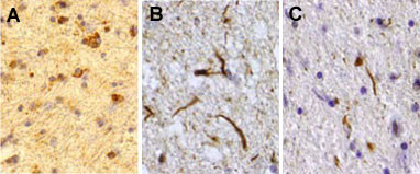 Sections of human brain stained with VU-1 ubiquitin monoclonal antibody