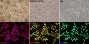 iPSC-derived Neural cells characterization - XCell Science by tebu-bio