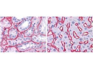 Collagen IV antibody