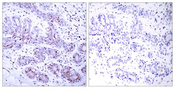 STAT4-antibody_IHC-P_GTX50403-1