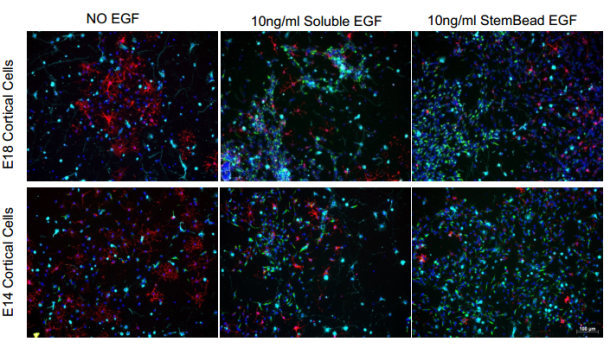 EGF StemBeads vs soluble EGF in IF staining of E14 and E18 Cortical cells tebu-bio