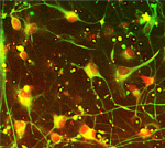 Live staining astrocytes derived from knock‐in reporter line for GFAP