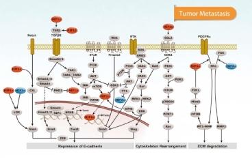 tumor metastasis