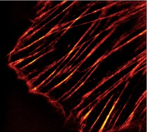 3D-SIM microscopy image of labeled Actin stress fibers in human primary dermal fibroblasts.