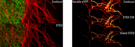 Dual color STED microscopy