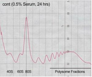 Polysome Profile