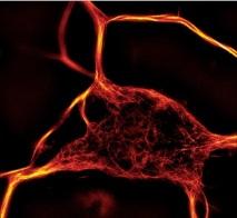 SiR Tubulin tebu-bio's fluorescent dye
