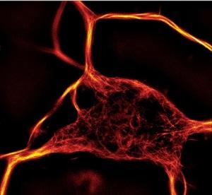 SiR Tubulin Spirochrome tebu-bio's fluorescent staining.