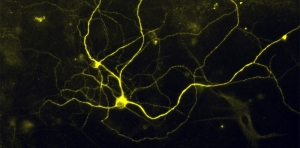 Human noxious stimulus–detecting (nociceptor) sensory neurons - (Credit: Elizabeth Buttermore, PhD).