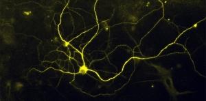 Human noxious stimulus–detecting (nociceptor) sensory neurons - (Credit: Elizabeth Buttermore, PhD).