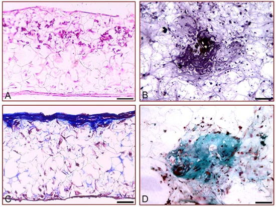 Figure 3: Deposition of calcium and collagen by rat MSCs differentiating into bone in 3D culture using Alvetex®Scaffold. 3D cultures of rat MSCs grown on Alvetex®Scaffold for 21 days. (A,B) Von Kossa silver staining to detect the deposition of calcium; (C,D) Masson's Trichrome staining of extracellular collagen matrix. Note the deposition of significant amounts of collagen in the upper layers of the scaffold (C). Scale bars: 40 µm (A,C); 80 µm (B,D).