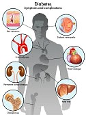 Diabetes Symptoms & Complications.