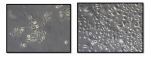 Human cryopreserved Sebocytes Morphology