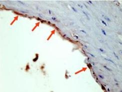 600-401-384-HA-EPITOPE-TAG-Antibody-1-IHC-4x3