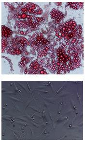 Subcutaneous Preadipocytes and Adipocytes biobank at tebu-bio