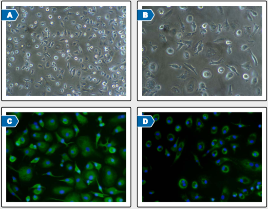 Photomicrographs and immuno-fluorescent staining of Kupffer cells from donor H1160 11 days post-plating.  Cultures continued to display mixed circular and elongated cell morphologies (A, 50x;  B, 100x). Circular and elongated cells continued to express CD68 (C, green) and CD163 (D, green) markers (100x).  Nuclei are stained blue with DAPI (C and D).