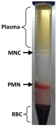 Purification of peripheral blood Granulocytes. Rondelli T., Berardi M. et al. PLoS One. DOI: 10.1371/journal.pone.0054046