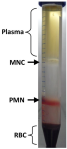 Purification of peripheral blood Granulocytes. Rondelli T., Berardi M. et al. PLoS One. DOI: 10.1371/journal.pone.0054046