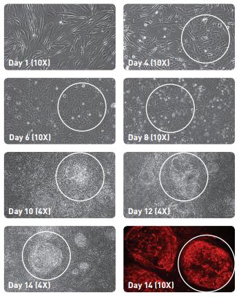 Time course human iPS regeneration with Stemgent reprogramming mRNA by tebu-bio