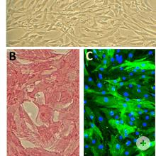 (A) Human Aortic Smooth Muscle Cells, HAOSMC.  HAOSMC immunolabeled for smooth muscle-specific alpha-actin by ABC method (B, red) and by immunofluorescence (C, green).  Nuclei are visualized with DAPI (C, blue).