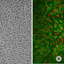 Human Carotid Artery Endothelial Cells, HCtAEC. Right: HCtAEC immunolabeled for vWF (green).  Nuclei are visualized with PI (red).