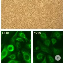 Top: Human Cervical Epithelial Cells, HCvEpC.  Bottom Left: HCvEpC immunolabeled with an anti-CK18 C-terminal antibody.  Bottom Right: HCvEpC immunolabeled with an anti-CK19 antibody.