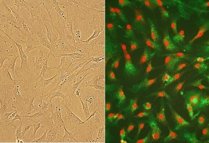 HCF (left).  HCF immunolabeled for FSP (right, green). Nuclei are stained with PI.