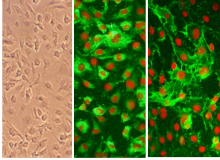 HITAEC immunolabeled for vWT (middle, green) and CD31/PECAM (right, green). Nuclei are visualized with PI (red).