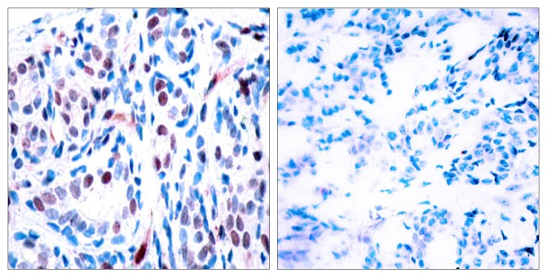STAT3 Phospho-Tyr 705 detection by IHC by tebu-bio and Assay Biotech (cat. nr 207A7224)