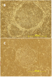examples of hESC/iPSC colony morphology when grown on dense (B) or sparse (C) MEF